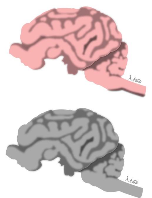 Brain, 2016